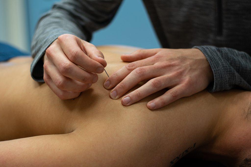 Fysiotherapie Bas Coenen | Dry Needling
